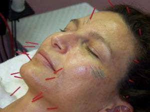طب سورنی و زالو درمانی برای زیبایی پوست صورت و بدن