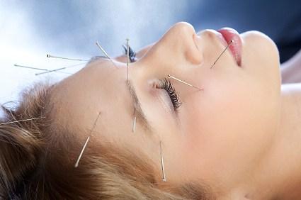 زیبایی پوست صورت و پوست بدن با کمک طب سوزنی یا زالو درمانی