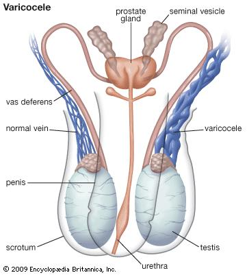 varicocel واریکوسل چیست؟