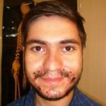 درمان جوش صورت با زالو درمانی