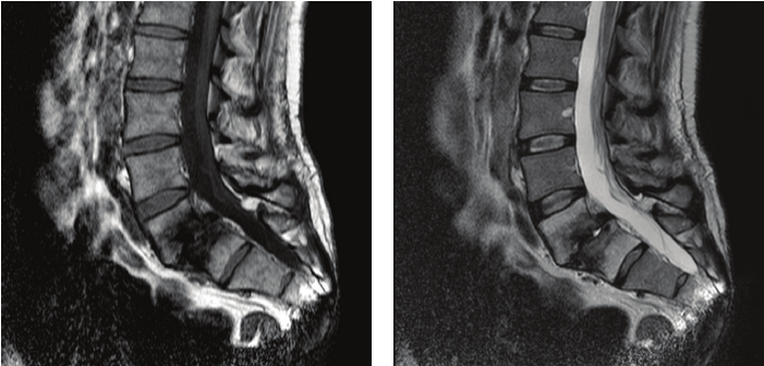 Figure-1-T1-a-and-T2-b-sagittal-lumbar-MRI-showing-an-L5S1-severe-discopathy-with