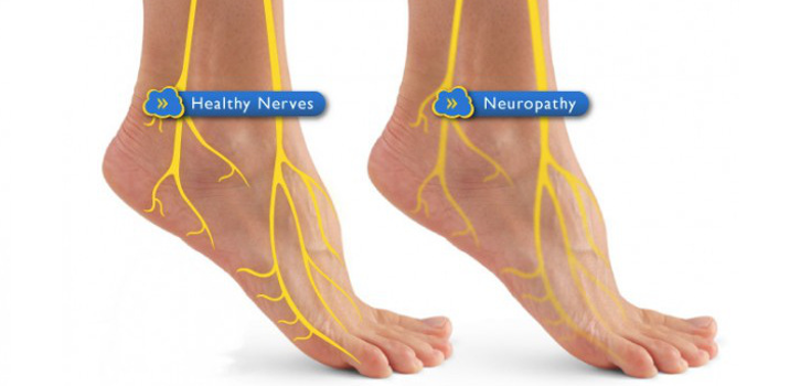 diabetic_neuropathy_feet-735_350