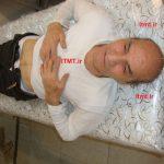 درمان وزوز-گوش-افت-شنوايي-ميگرن-سردرد- طب سنتی - زالو درمانی