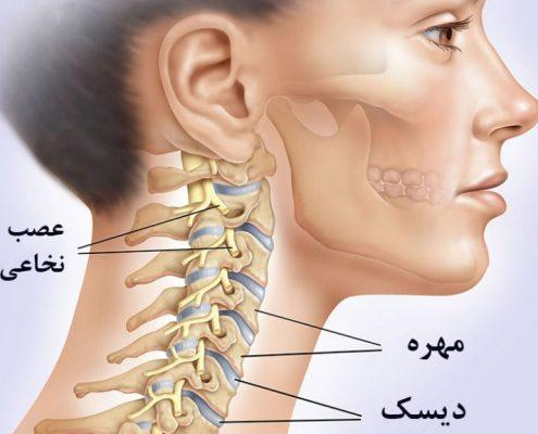 درمان دیسک گردن طب سنتی سوزنی زالو درمانی