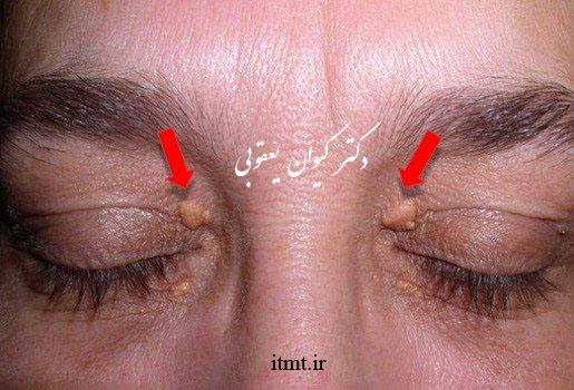 جوش های زرد در ناحیه پری اوربیتال چشم ها