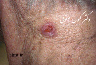 ضایعه بدخیم کارسینوم سلول قاعده ای (BCC) (Basal cell carcinoma)